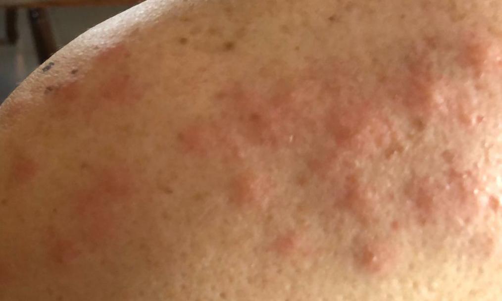 El PP de Burriana exige al PSPV tratamientos aéreos contra el mosquito para evitar otra alerta sanitaria